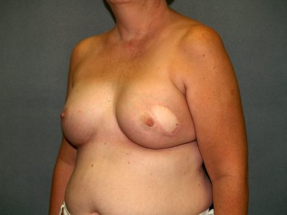 Breast Reconstruction Before & After Patient #2259