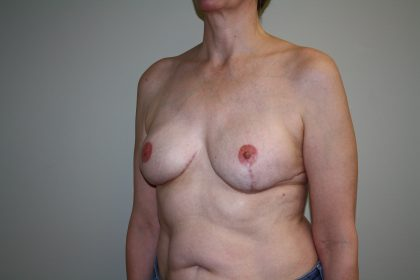 Breast Reconstruction Before & After Patient #1797
