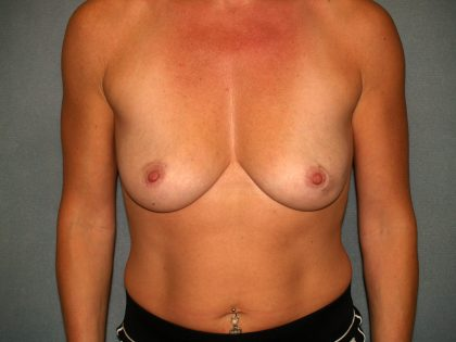 Breast Reconstruction Before & After Patient #2187