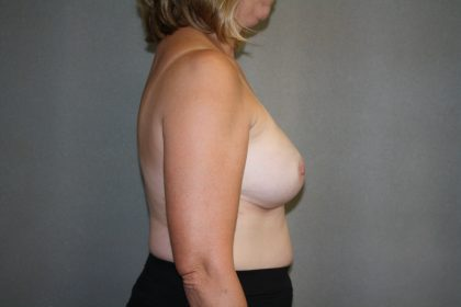 Breast Reconstruction Before & After Patient #1977