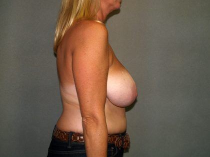 Breast Reduction Before & After Patient #3322
