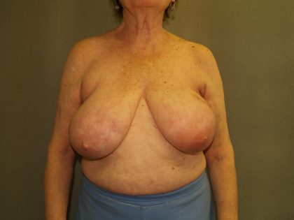 Breast Reconstruction Before & After Patient #2244
