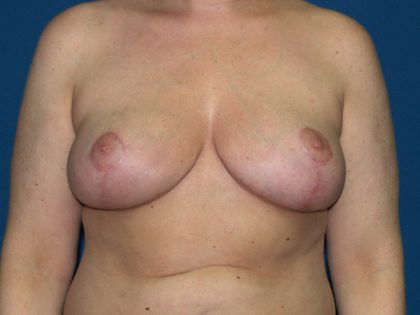 Breast Reduction Before & After Patient #3297