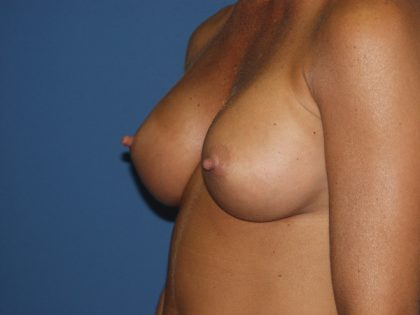 Breast Augmentation Before & After Patient #2892