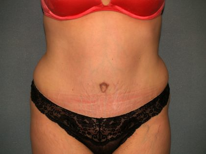 Tummy Tuck Before & After Patient #2005