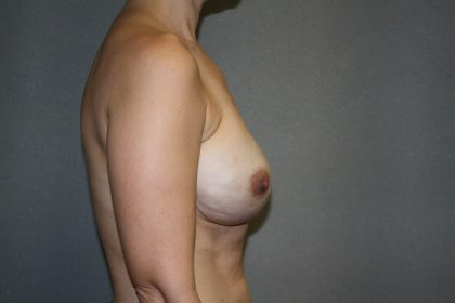 Breast Reconstruction Before & After Patient #1862