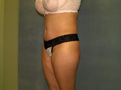 Tummy Tuck Before & After Patient #2377