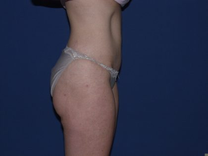 Liposuction Before & After Patient #3549