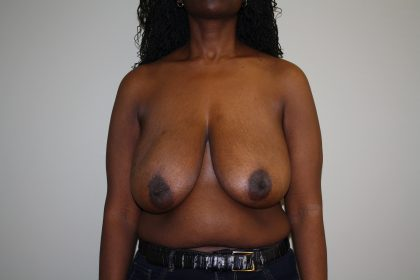 Breast Reconstruction Before & After Patient #1790