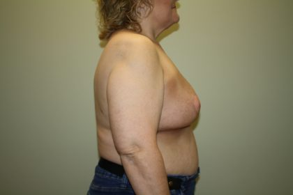 Breast Reconstruction Before & After Patient #2297