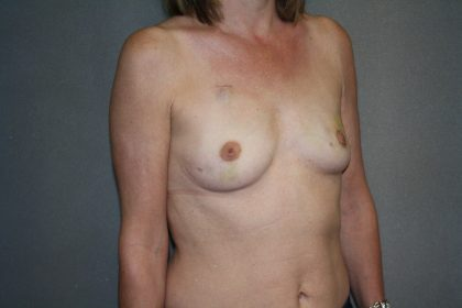 Breast Reconstruction Before & After Patient #1941