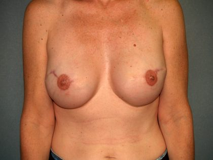 Breast Reconstruction Before & After Patient #2130