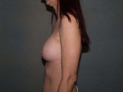 Breast Reconstruction Before & After Patient #2284