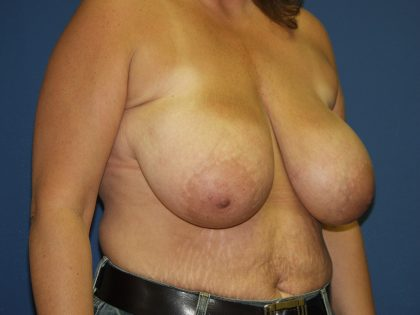 Breast Reduction Before & After Patient #3510
