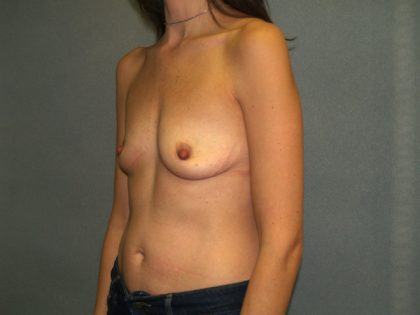 Breast Augmentation Before & After Patient #2647