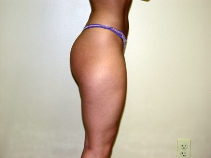 Liposuction Before & After Patient #3613