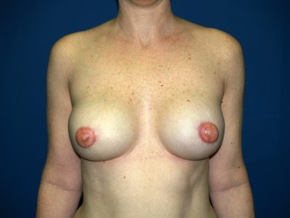 Breast Reconstruction Before & After Patient #1833