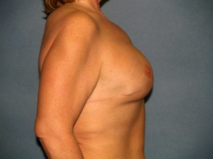 Breast Reconstruction Before & After Patient #1825