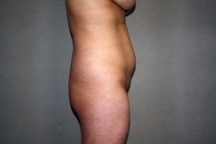 Liposuction Before & After Patient #3867