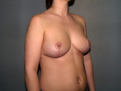 Breast Reduction Before & After Patient #3529