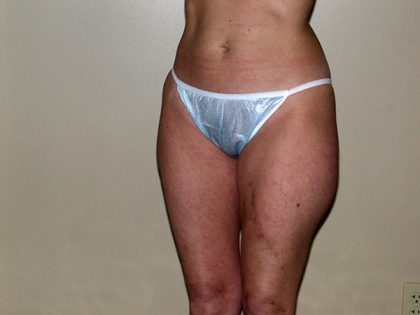 Liposuction Before & After Patient #3656