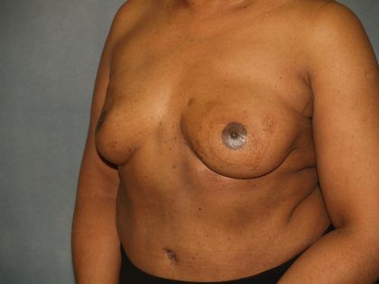 Breast Reconstruction Before & After Patient #1774
