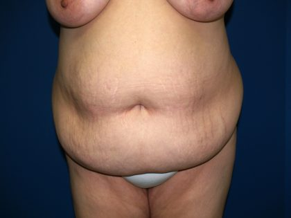 Tummy Tuck Before & After Patient #1976