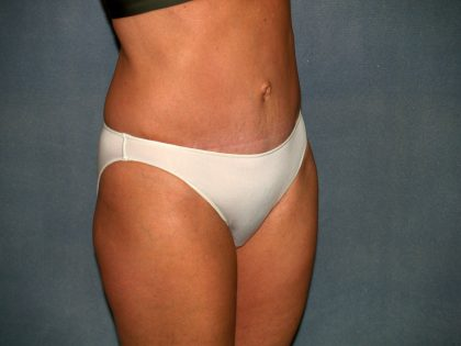 Tummy Tuck Before & After Patient #2295