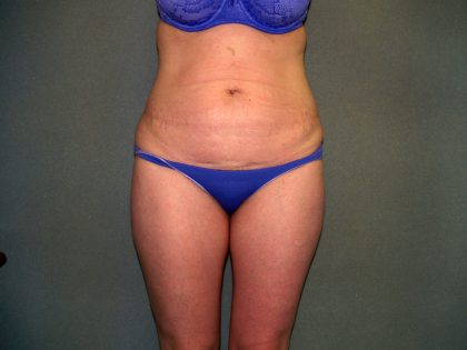 Tummy Tuck Before & After Patient #2261