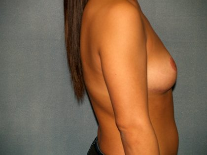 Breast Reduction Before & After Patient #3129