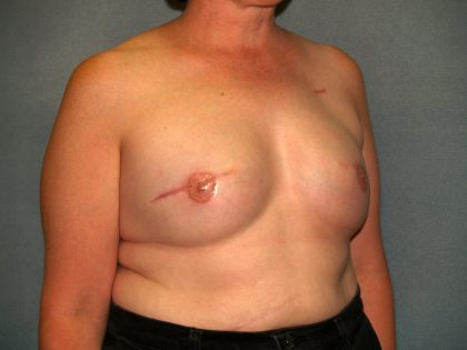 Breast Reconstruction Before & After Patient #2195
