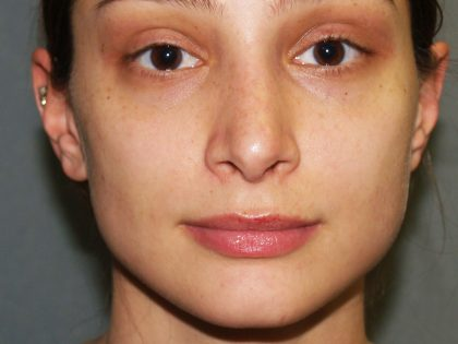 Nose Surgery Before & After Patient #834