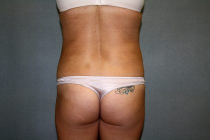 Liposuction Before & After Patient #3805