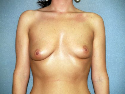 Breast Lift Before & After Patient #1425