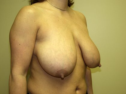 Breast Reduction Before & After Patient #3493
