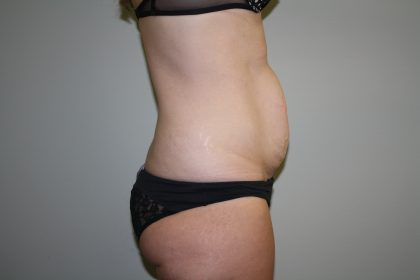 Tummy Tuck Before & After Patient #1990