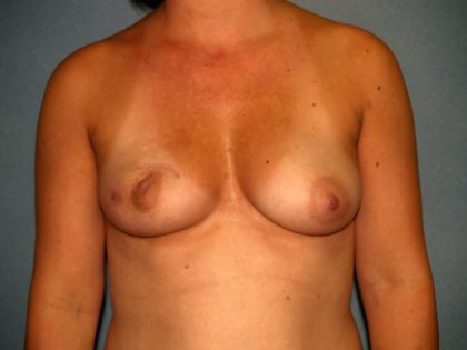 Breast Reconstruction Before & After Patient #2018
