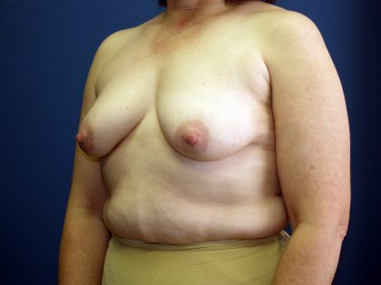 Breast Lift Before & After Patient #1516