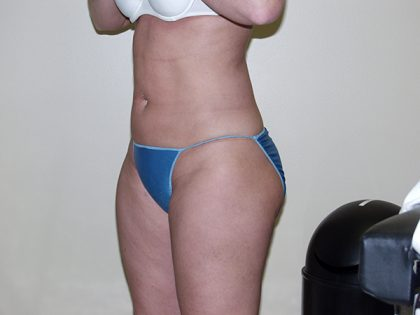 Liposuction Before & After Patient #3720