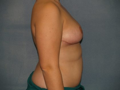 Breast Reduction Before & After Patient #3458