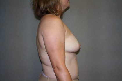 Breast Reconstruction Before & After Patient #2032