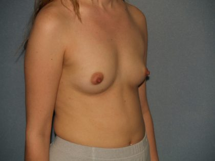Breast Augmentation Before & After Patient #3187