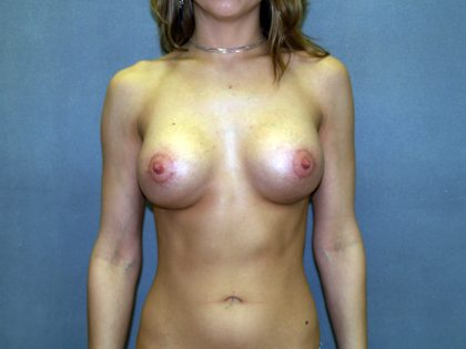 Breast Lift Before & After Patient #1530