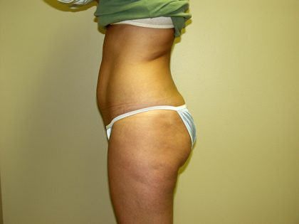 Liposuction Before & After Patient #3775