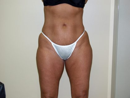 Liposuction Before & After Patient #3817