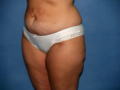 Tummy Tuck Before & After Patient #2151