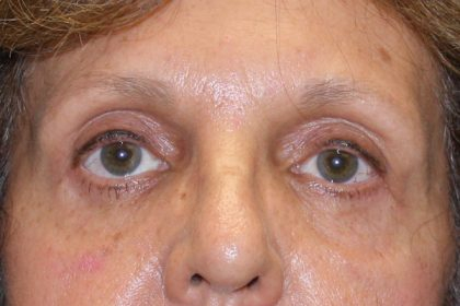 Eye Surgery Before & After Patient #4075